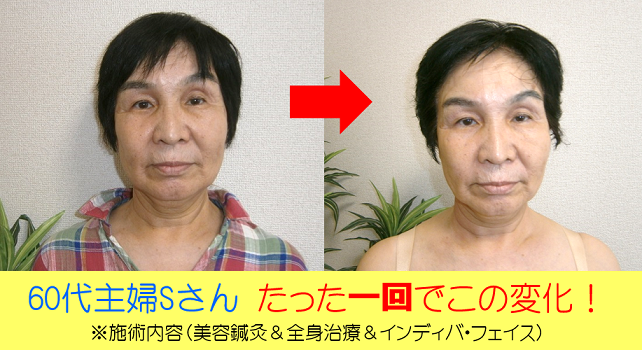 美容鍼灸浜松